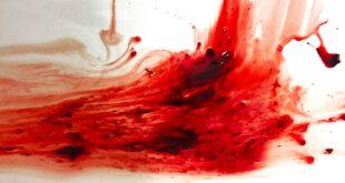 أعراض سحر دم الحيض